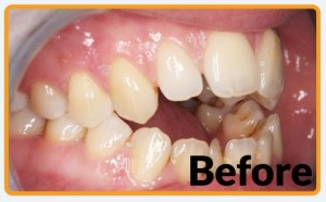 before Fastbraces with open bite